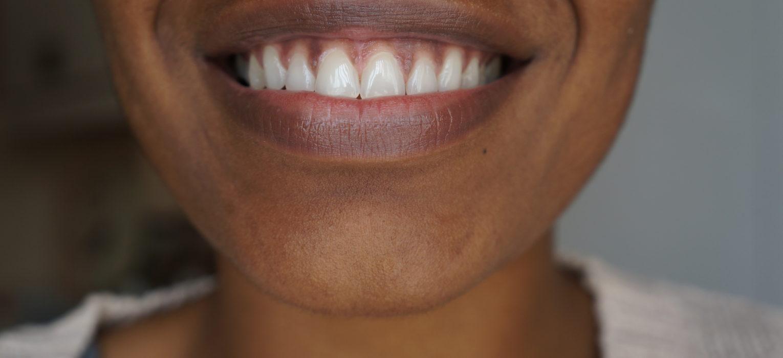 Product Review Mr Blanc Express Teeth Whitening Strips The Mini Braid Method